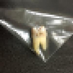 6年前(便宜)抜歯した歯(歯列矯正するきっかけになった歯)
