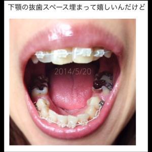"""あの銀歯だった件 """"歯が動くと見えてくるモノ それは…"""""""
