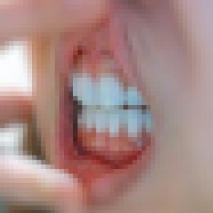 """歯グッキーの現状  """"歯グッキーのその後(上下歯茎の比較写真)"""""""