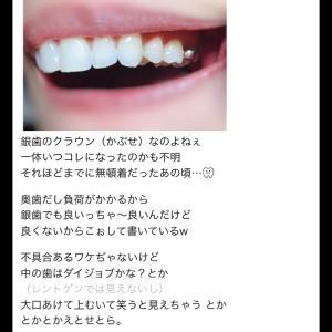 7番の銀歯の神経どないなっとんの?(質問お答え♡)