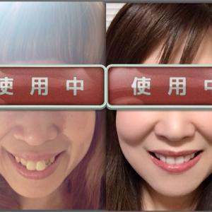 矯正前と矯正後の比較写真(正面)