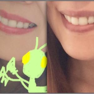 歯謎が解けた動画(保険治療内での) 白いレジン治療と銀歯治療の違い