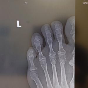 足の小指骨折の場合