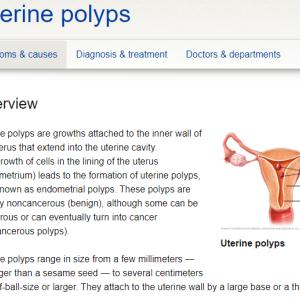病理検査の結果 ~Endometrial polyp