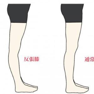 脚が細くならないのは膝が反ってるからかも!?