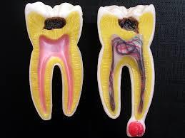 歯が無くなったまま放置してはダメ!