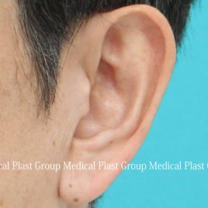 耳たぶ縮小(耳垂縮小)(耳垂形成)手術 術後1週間のご紹介
