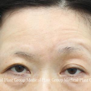 左目だけの皮膚を切開しない眼瞼下垂修正症例 50代