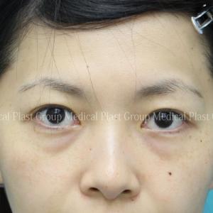 目の下クマ治療 皮膚を切らない脱脂と脂肪注入手術後3日⇒5日⇒3か月経過をご紹介❣