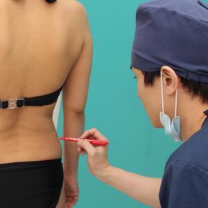 うしろ姿で意外と目立つ腰のお肉はリポセル治療で♪