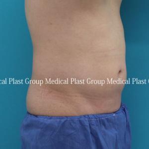お腹専用脂肪溶解注射プロストロレーンインナーB&リポセル症例 治療後1ヶ月
