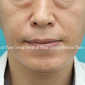 男性のほうれい線 脂肪注入での改善症例 40代
