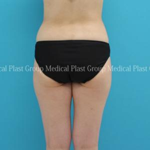 手強い腰肉と太ももは、リポセル治療で♪ 40代女性