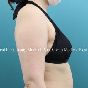 脂肪吸引でも弛みが出やすい背中はリポセル治療で♪ 40代女性