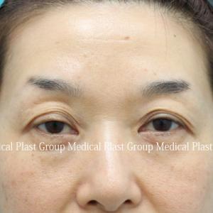 コンタクト性眼瞼下垂修正手術 術後5年6か月の経過紹介♪