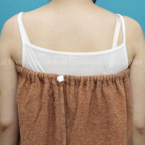 二の腕痩せ 脂肪溶解注射とリポセル併用症例