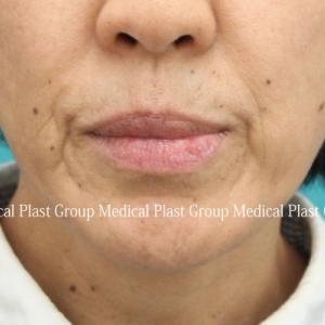 口元のタルミをヒアルロン酸とベビーコラーゲン注射で治す♪ 50代