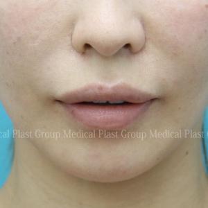 マスク生活のせい⁈ 増えてる口角挙上術 昨日モニター様の術中風景