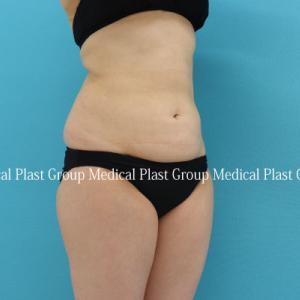 他院で痩身機器をいろいろ試された方のリポセル下半身症例 40代