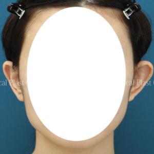 「子供の頃に指摘されて....」 たち耳修正手術 20代女性 術後6ヶ月
