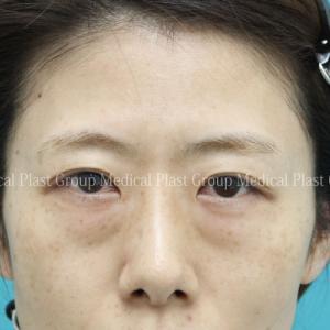 目の下のタルミ治療を受けて性格まで変わりました♪