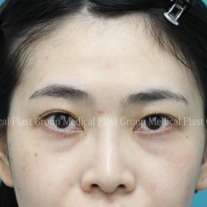 中学の頃から悩んでいた目の下くまを脂肪移植で治療しました❣ 20代女性