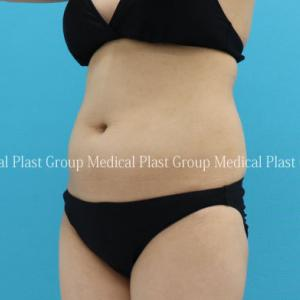 リモートワークで、お腹に付きやすい脂肪はリポセル♪