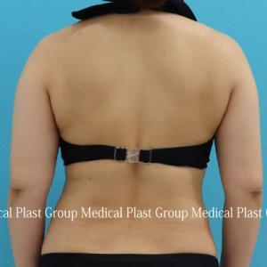 二の腕の付け根の脂肪が減るだけで~♪ リポセル治療❣