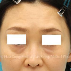 目の下のタルミを脂肪再配置=(裏ハムラ)+頬前面引き上げ 術後6ヶ月