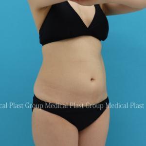 コロナで10kg太った方のお腹を リポセルで1か月後