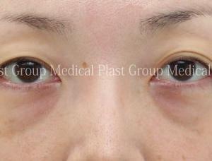 脱脂では悪化する目の下 脂肪再配置=眼窩脂肪組み換え術=裏ハムラで治療
