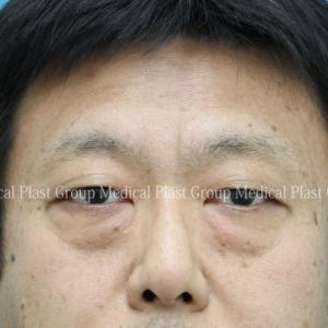 目の下脱脂+脂肪移植(注入)1年後⇒5年2ヶ月後