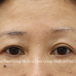 まぶたのタルミの左右差を眉下切開手術で治療☆気になる傷痕は⁉