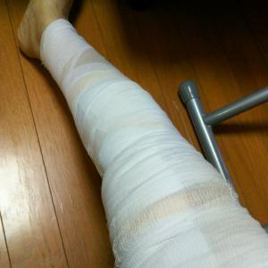 下肢静脈瘤の手術受けました