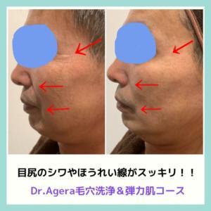 お客様Before→After【Dr.Agera毛穴&弾力肌コース】