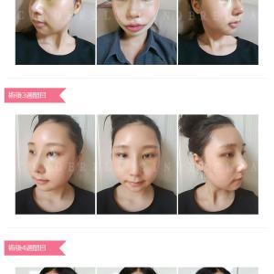 韓国で美容整形ツアーをご検討でしたらシンデレラ美容外科「リアルストーリ」