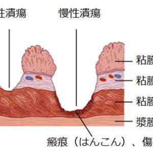 ●字引: 潰瘍(かいよう)、びらん、穿孔(せんこう)