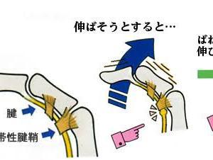 また、ばね指の手術