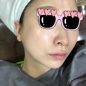 [新村]美肌は韓国クリニックで♡シミも毛穴も撃退!