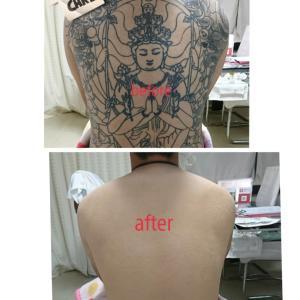 タトゥーカバー と 健康診断
