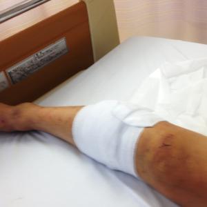 退院してきました。