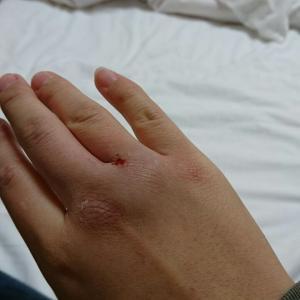 手がボコボコになりました