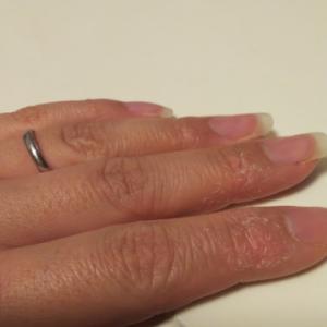 水イボと乾燥肌(5歳0ヶ月)