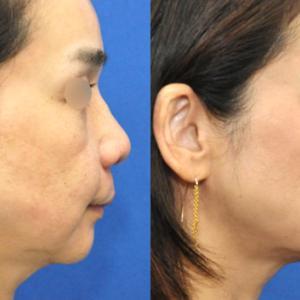 ヒアルロン酸による中顔面の若返りとリヌビオンフェイスネックリフトモニター