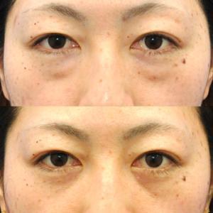 拡大経結膜下瞼形成のご案内