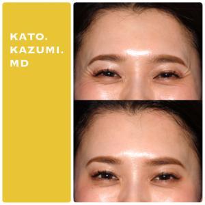 額と目尻の表情ジワのボトックス治療について。