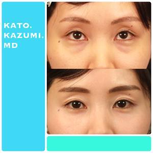 拡大経結膜下瞼形成手術・目の下たるみ・