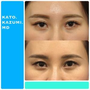 他院修正手術・上眼瞼形成及び下眼瞼形成