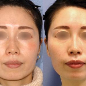 ヒアルロン酸、ボトックス注入でお顔の形と表情を美化させる