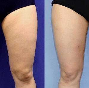 ベイザー脂肪吸引後の合併症例の修正